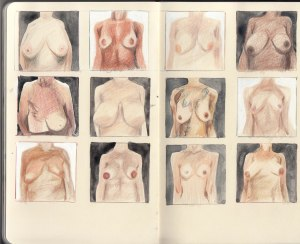 Breasts - after L Dodsworth